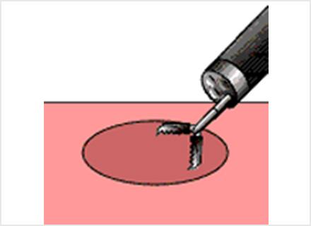 6-止血手順切り取った後の胃の表面に止血処置を施し、切り取った病変部は病理検査に出すために回収する