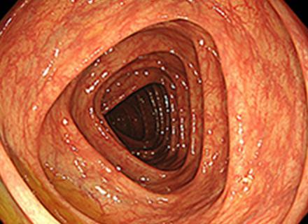 大腸(正常)