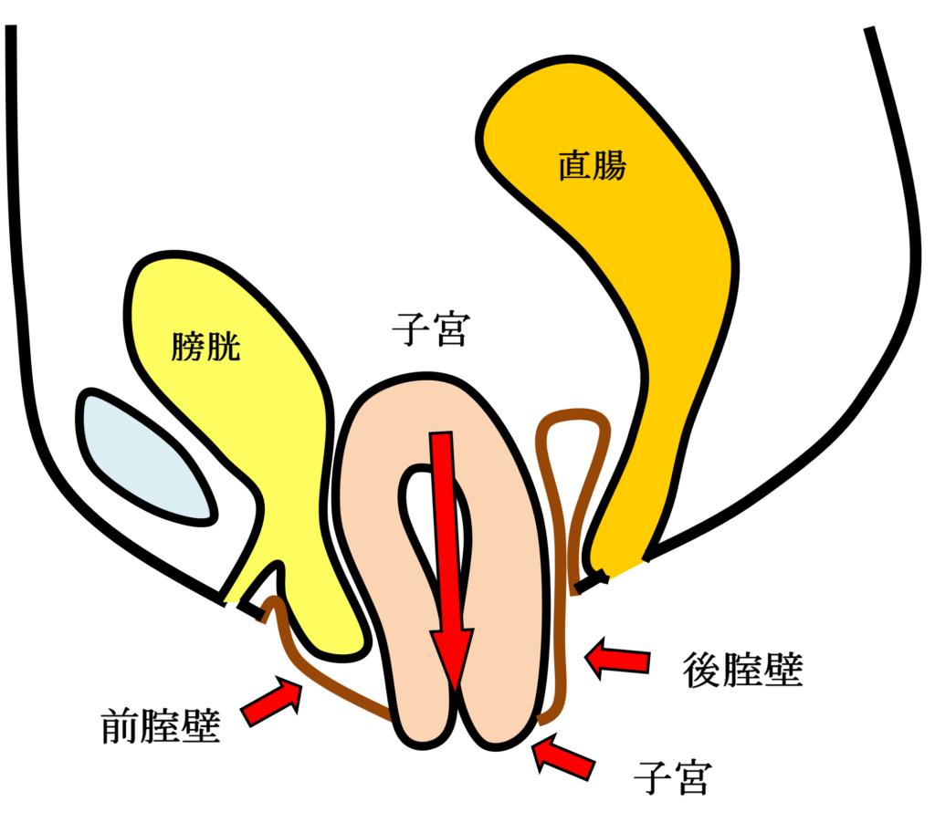 子宮脱の女性骨臓器位置