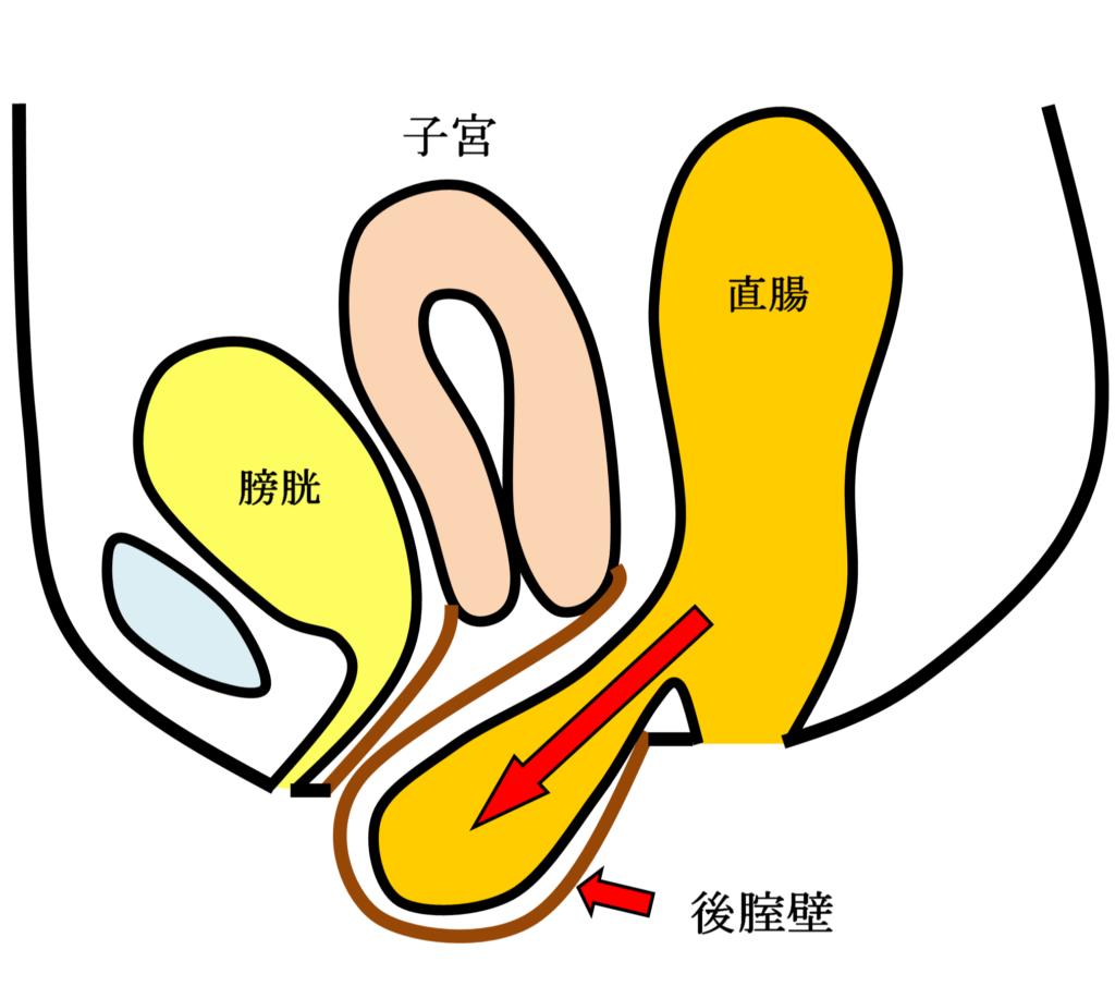 直腸瘤の女性骨臓器位置