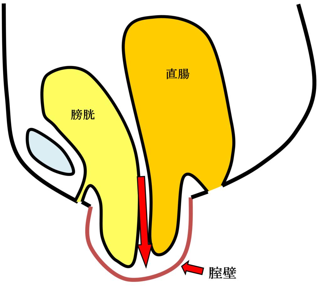 腟断端脱の女性骨臓器位置