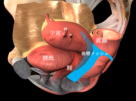 プロリフト型 P-TVM の手術模式図
