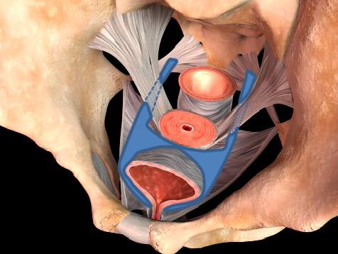 アップホールド型 TVM の手術模式図