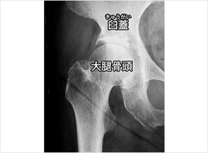 図1a.肩関節