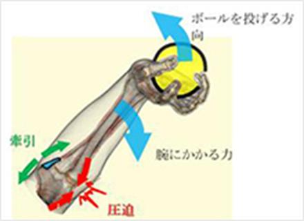 図1b.肘にかかる力