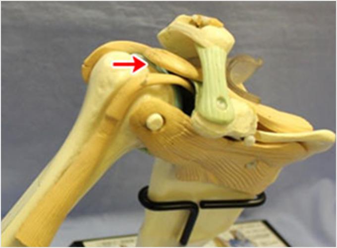 図2b.腱板が切れた状態