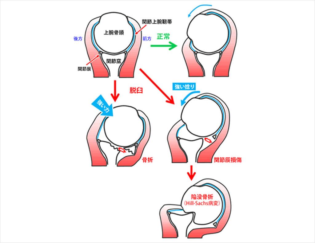 図3.正常と脱臼