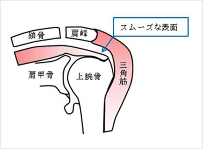 図3a.正常な状態
