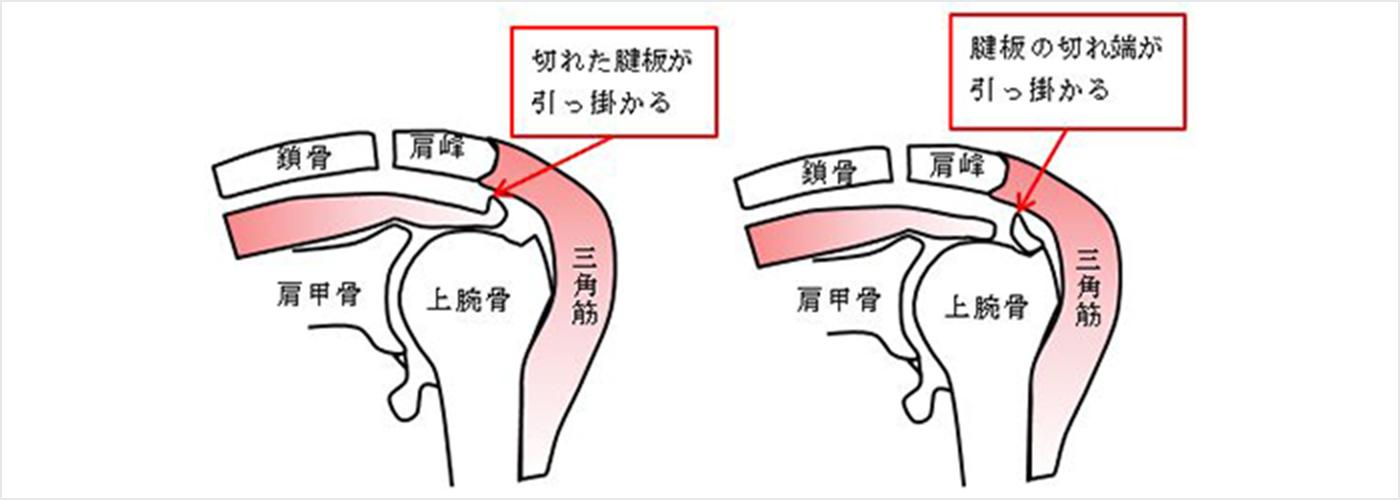 図3b.腱板が切れた状態