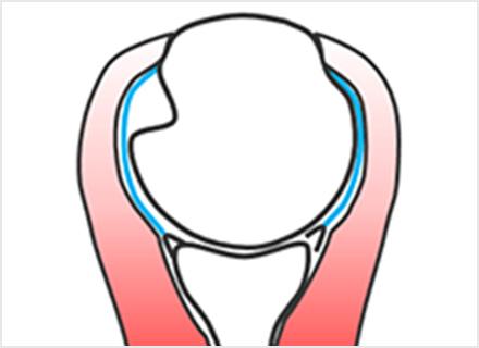 図4d.関節唇損傷+陥没骨折