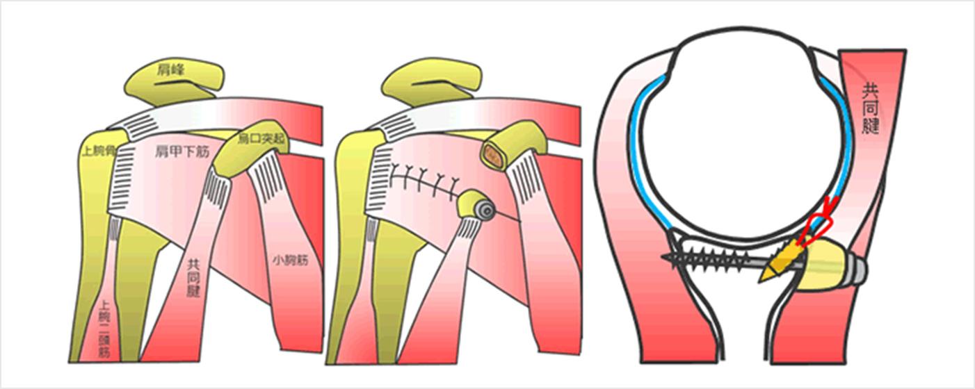 図7a.烏口突起の移植(ブリストウ法といいます)
