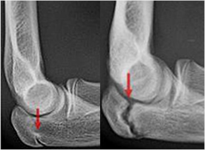 図5b.肘頭骨端線閉鎖不全