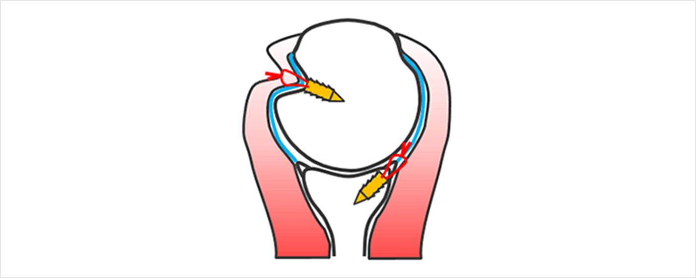 図7b.上腕骨頭の陥没骨折部分に関節包と腱板を縫い付け補強する方法(Remplissage法といいます)