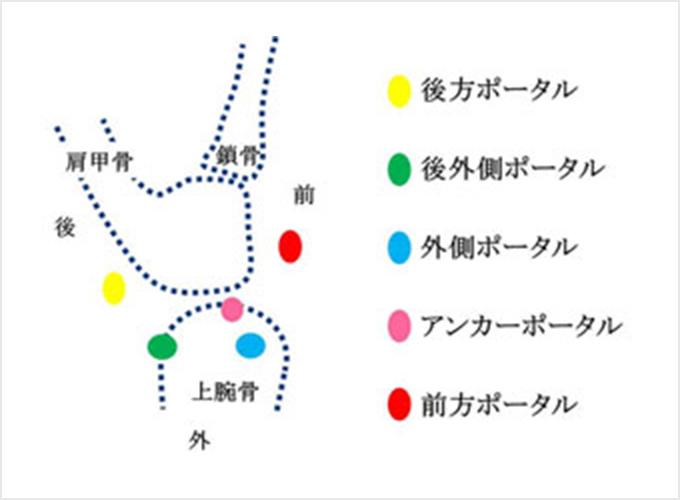 図6. 皮膚切開(ポータルといいます)の位置
