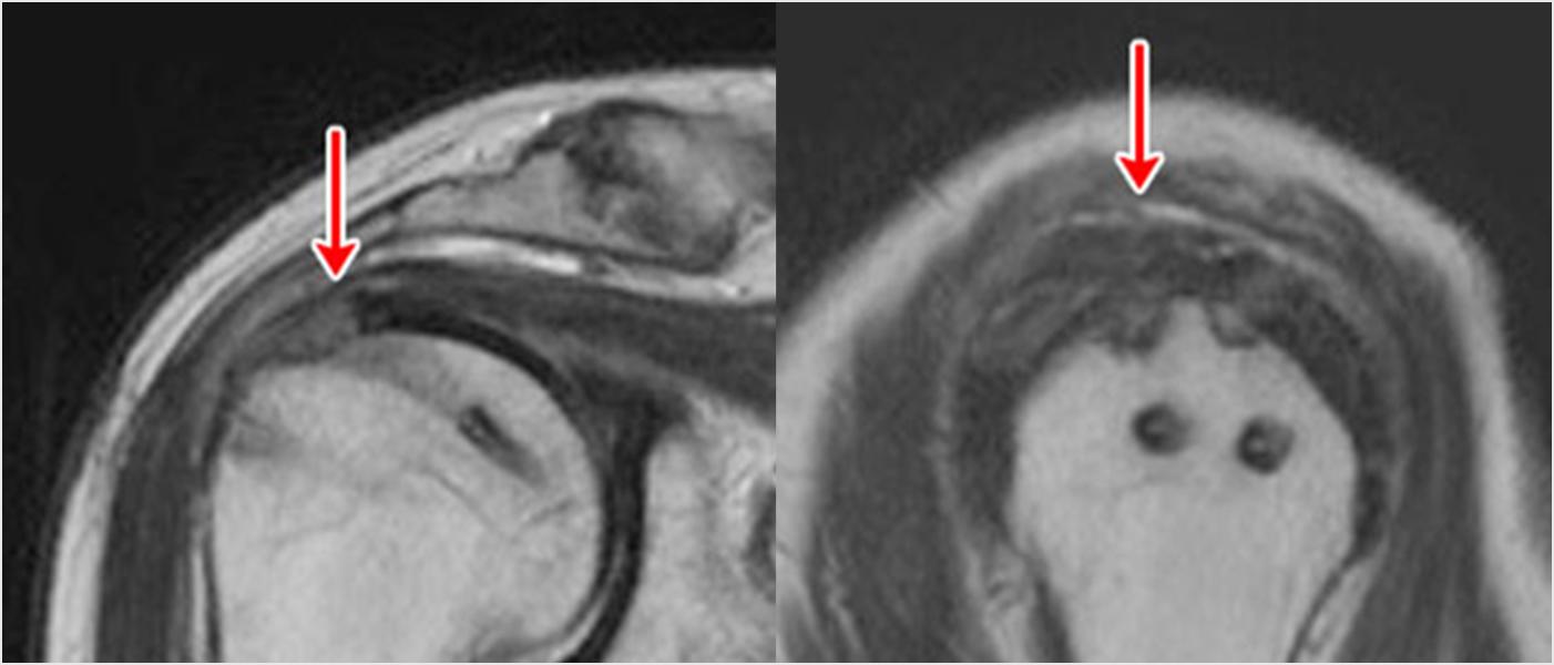 術後のMRI:腱が骨に癒合して白い部分(断裂部分)がなくなっています