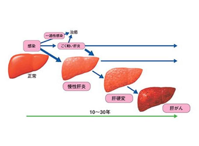 ウイルス性慢性肝炎の経過(図2)