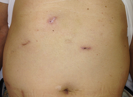 小さな傷で手術ができて患者さんへの負担が少ない手術(図8-1)